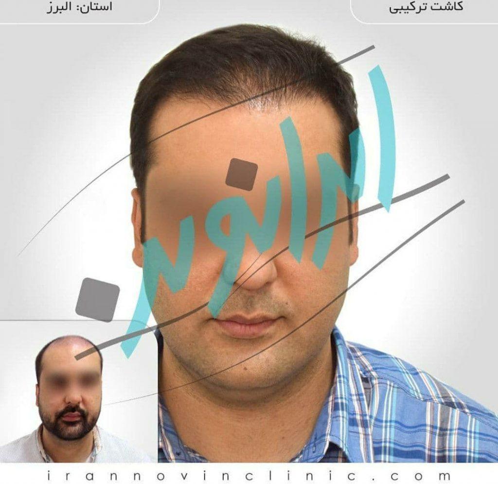 کاشت مو در ایران نوین با شرایطی شگفت انگیز