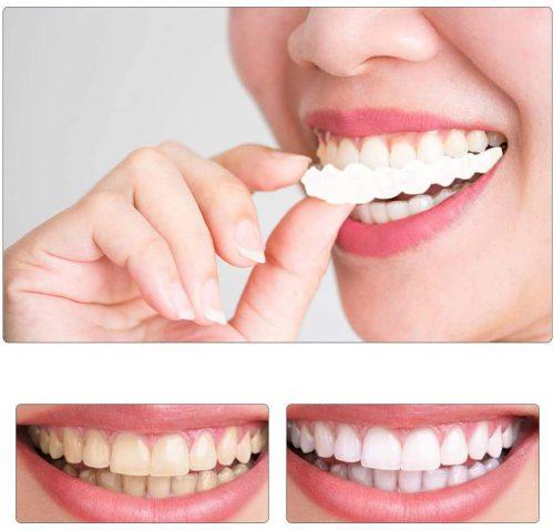 لمینت متحرک دندان اورجینال دوفک